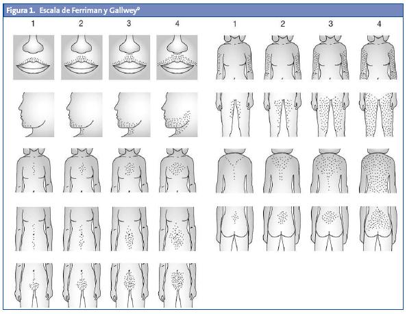 Figura 1. Escala de Ferriman y Gallwey