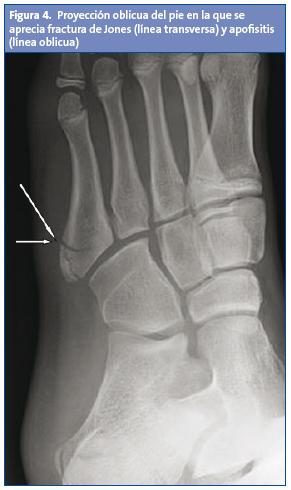 Figura 4 proyecci n oblicua del pie en la que se aprecia for Cuarto y quinto metatarsiano